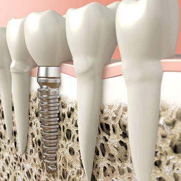 implantes dentales mataro