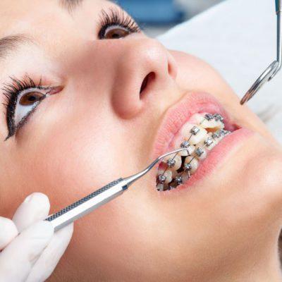 ortodoncia mataro
